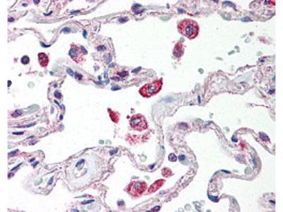 Anti-TLR2/CD282 Antibody