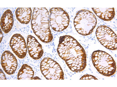 Anti-PD-1 (Programmed Death 1)/CD279 (Cluster of Differentiation 279) Antibody