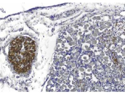 Anti-PMP22 Antibody