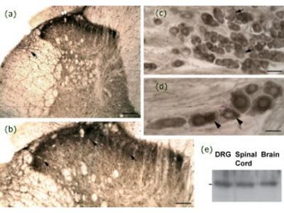 Anti-Neurotensin Receptor 1 (NTS1) Antibody