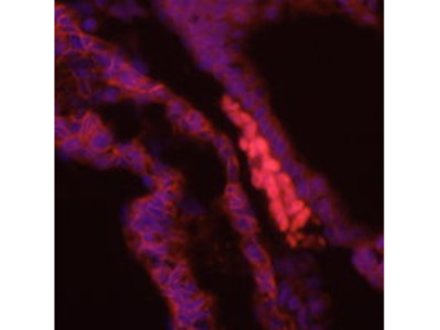 Anti-Brachyury Antibody
