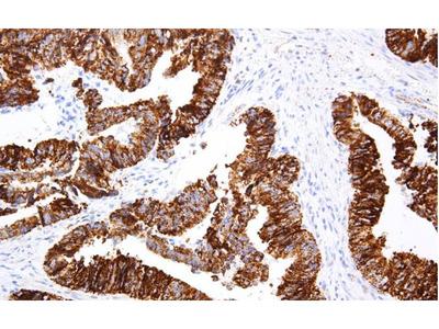 Anti-p504s/AMACR (α-Methylacyl Coenzyme A Racemase) Antibody