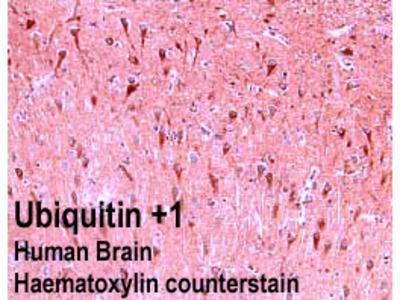 Anti-Ubiquitin+1 Antibody
