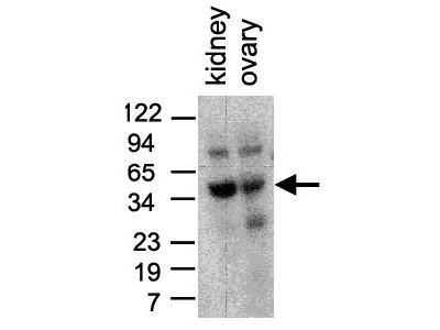 Anti-TIM-1 Antibody