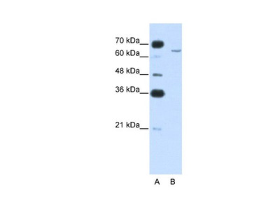 CPEB2 Polyclonal Antibody