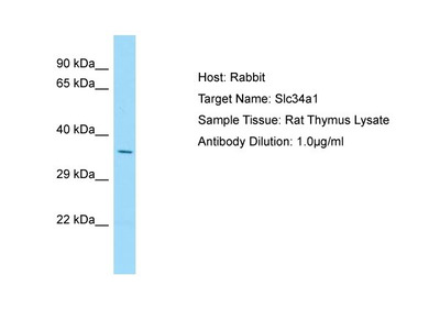 SLC34A1 Polyclonal Antibody