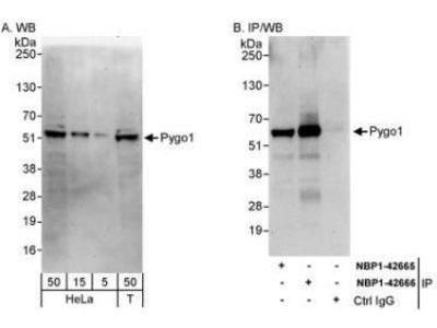 Rabbit Polyclonal Pygopus-1 Antibody