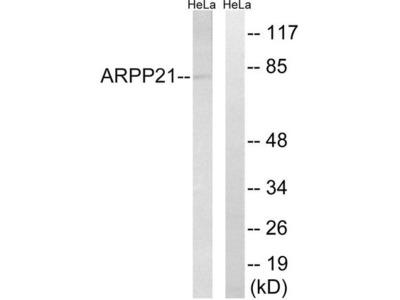RCS / ARPP-21 Antibody