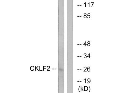 CMTM2 Antibody