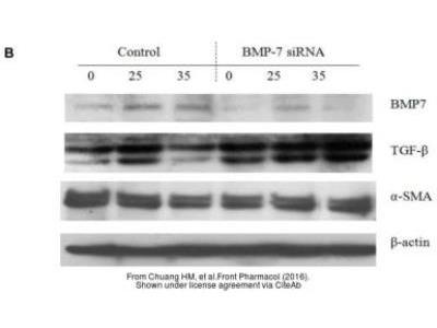 alpha-Smooth Muscle Actin Antibody