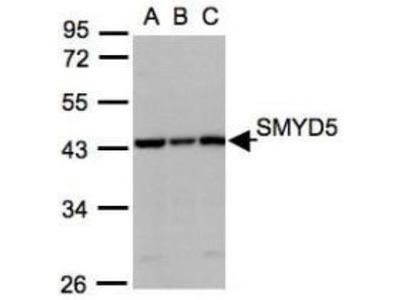 SMYD5 Antibody