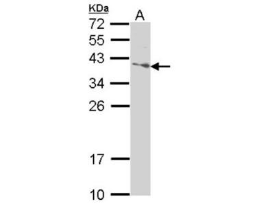 Rabbit Polyclonal SAP30BP Antibody