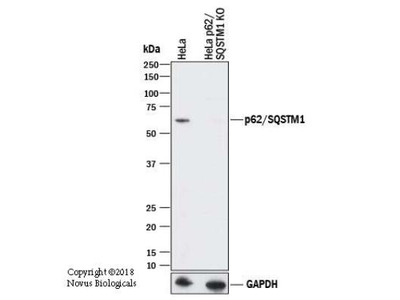 p62 /SQSTM1 Antibody