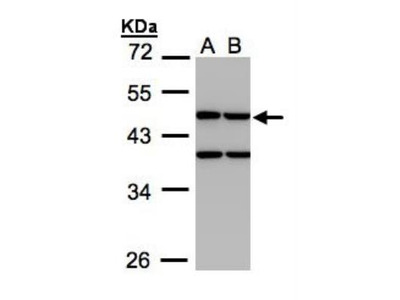 Rabbit Polyclonal Creatine kinase MT 1B Antibody