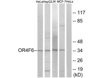OR4F6 Antibody
