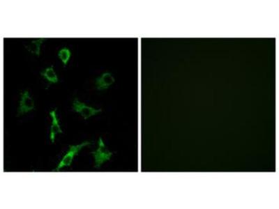 OR5B3 Antibody