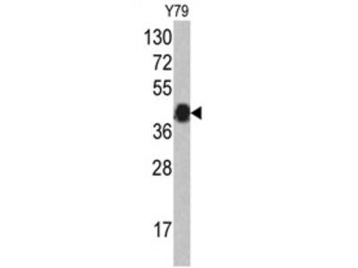 anti AZGP1 (N-term)