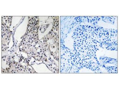 PHLDA3 Antibody