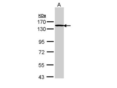 TTF2 Antibody
