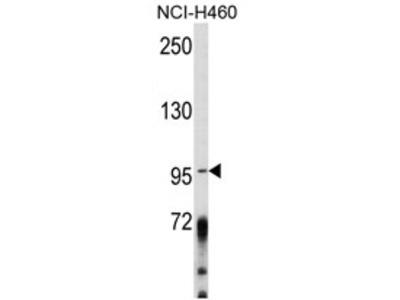 AKAP3 rabbit polyclonal antibody
