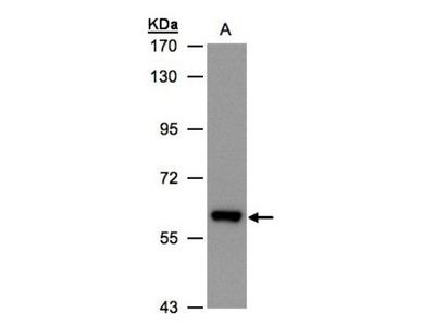 ALDH6A1 Antibody