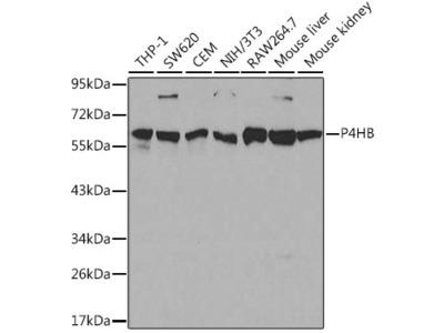 P4HB Polyclonal Antibody