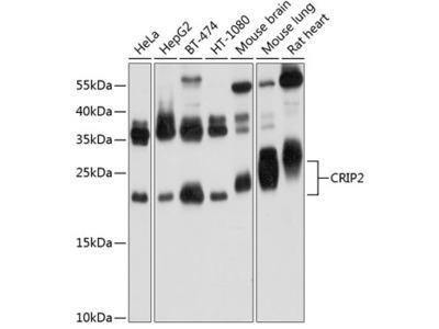 CRIP2 Polyclonal Antibody