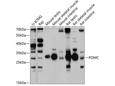 POMC Polyclonal Antibody