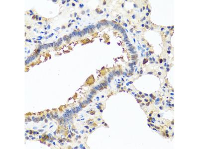 CHI3L2 Polyclonal Antibody