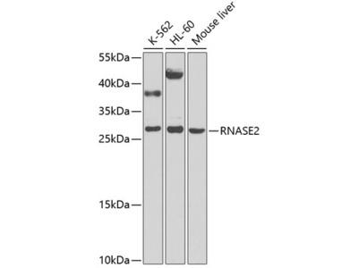 RNASE2 Polyclonal Antibody