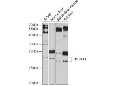 PTP4A1 Polyclonal Antibody