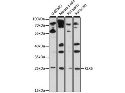 KLK6 Polyclonal Antibody