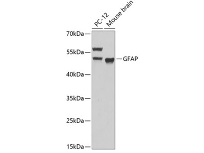 GFAP Polyclonal Antibody