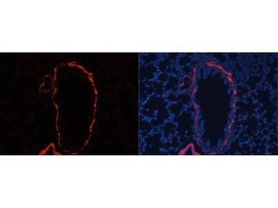 alpha smooth muscle actin Polyclonal Antibody