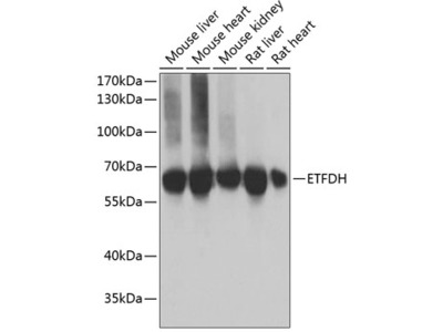ETFDH Polyclonal Antibody