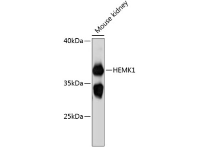 HEMK1 Polyclonal Antibody