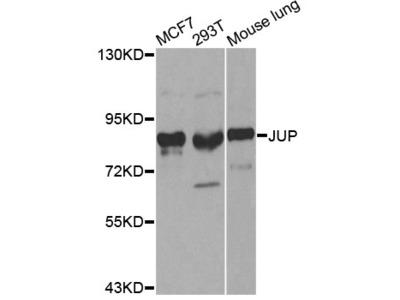 JUP Polyclonal Antibody