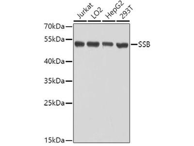 SSB Polyclonal Antibody