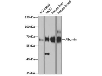 Albumin Polyclonal Antibody