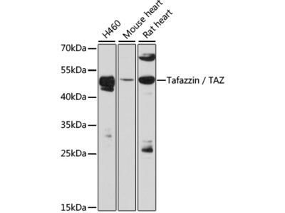 Tafazzin-TAZ Polyclonal Antibody