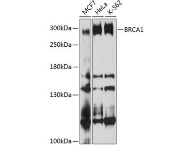 BRCA1 Polyclonal Antibody
