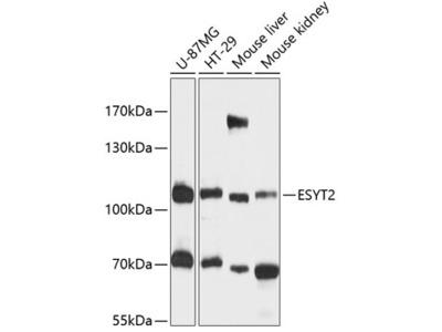 FAM62B Polyclonal Antibody