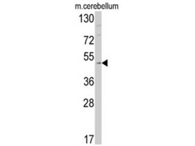 anti Endothelin B receptor (C-term)