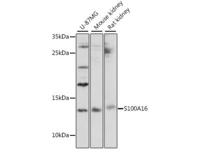 S100A16 Polyclonal Antibody