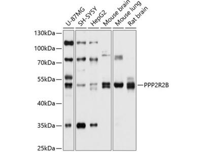 PPP2R2B Polyclonal Antibody