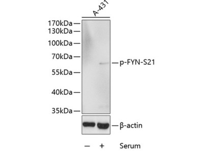 Phospho-FYN-S21 Polyclonal Antibody