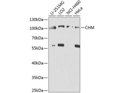 CHM Polyclonal Antibody