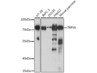 TRPV6 Polyclonal Antibody