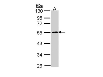 PPP2R2B Antibody