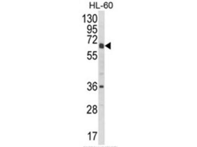 anti CYP2C18 (C-term)